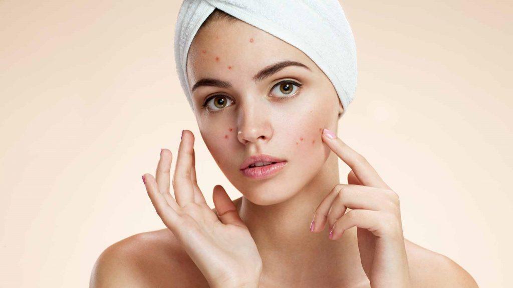 Tại sao chăm sóc da kỹ mà vẫn bị mụn?