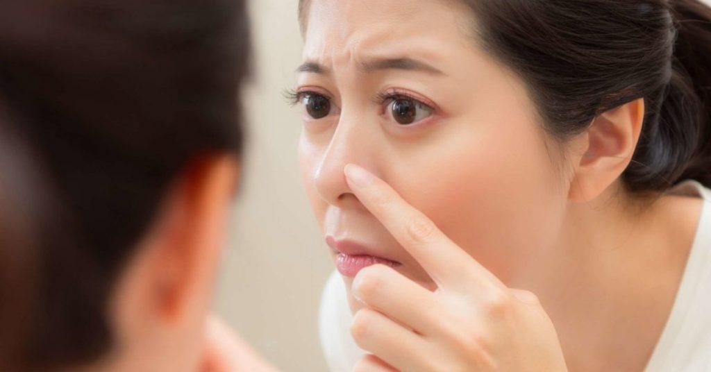 Không nên lột mụn khi da nhạy cảm
